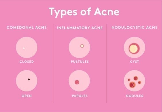 Chart of different kinds of pimples