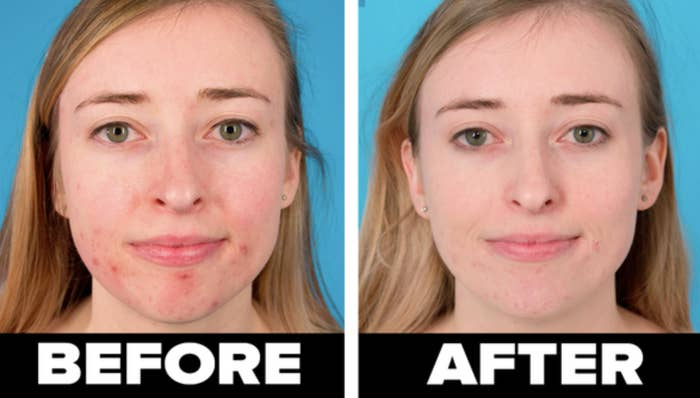 On the left, BuzzFeed editor Sarah Wainschel's face before using the clay mask. On the right, Wainschel's face with less acne after using the clay mask