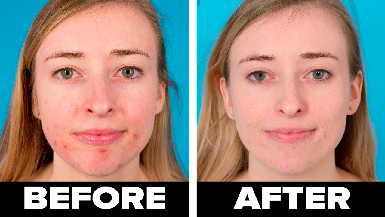 BuzzFeed staffer on left with visible acne labeled before and on right, same staffer with visibly less acne
