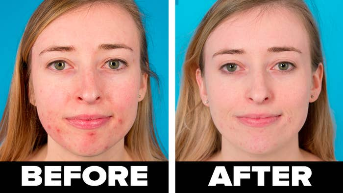 """on the left, BuzzFeed employee Sarah Wainschel with redness and acne around her chin labeled """"before"""" and on the right, an image of Sarah labeled """"after"""" with significantly less acne"""