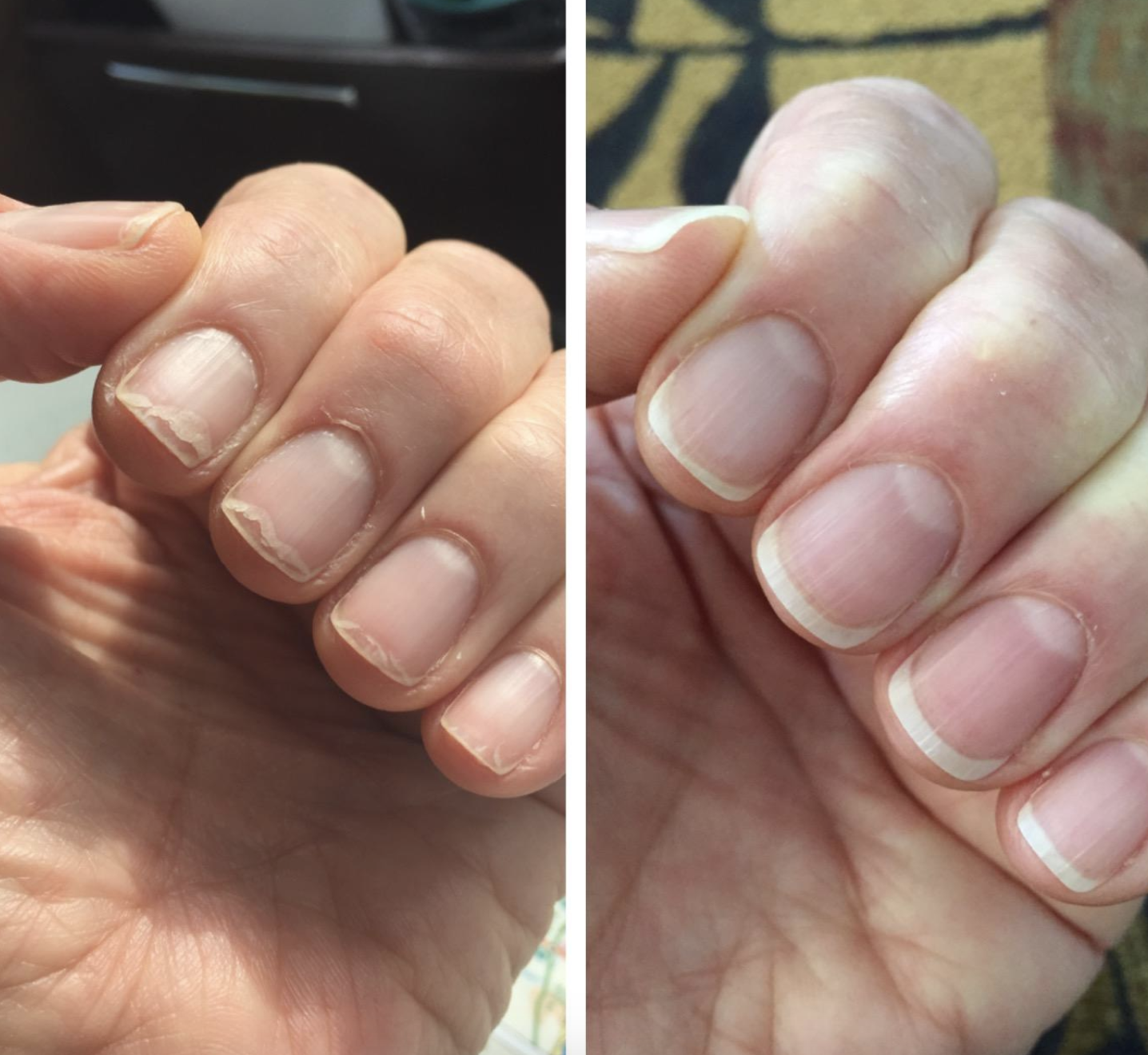 On the left, a reviewer's nails are peeled back into the nail bed and their cuticles are flaking. On the right, the reviewer's nails are healthy and grown with flat cuticles