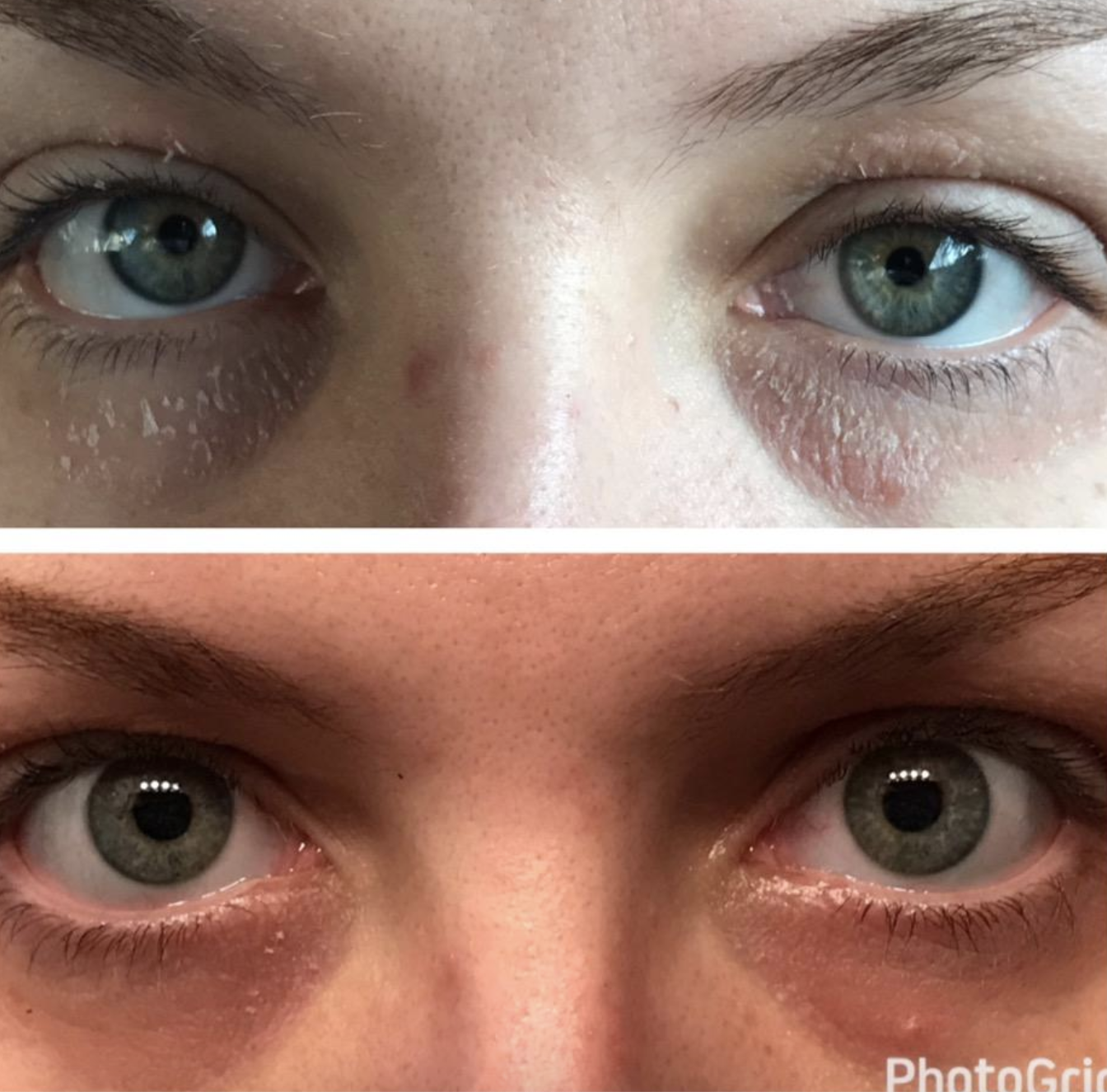 on the top portion a person with patches of dry skin around their eyes and on the bottom the same person with significantly less dry skin