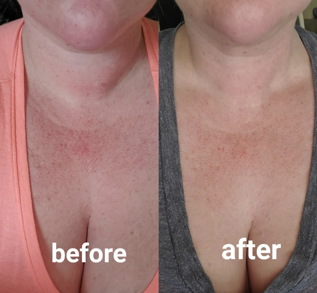 On the left, a reviewer's chest is red and splotchy from a psoriasis outbreak. On the right, the reviewer's chest is visibly calmer and less red