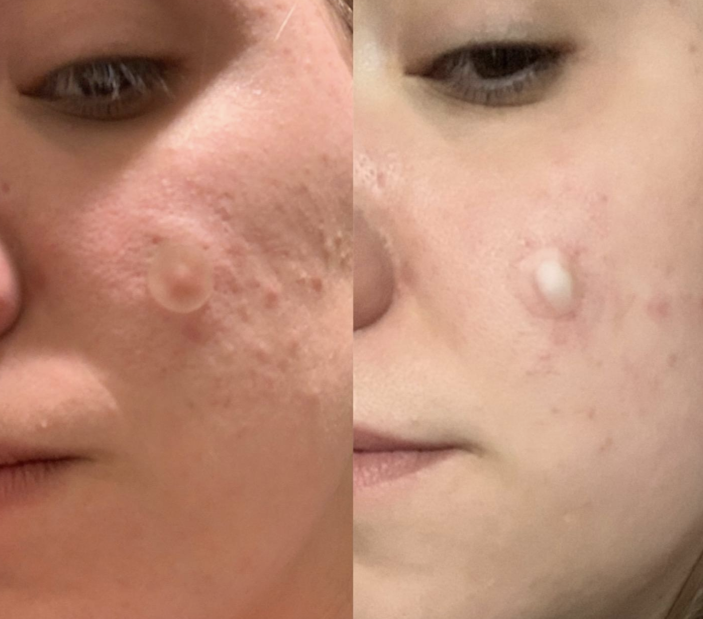 on the left a person with a transparent sticker placed on top of a pimple and on the right the same person with with the same transparent sticker filled with white pus