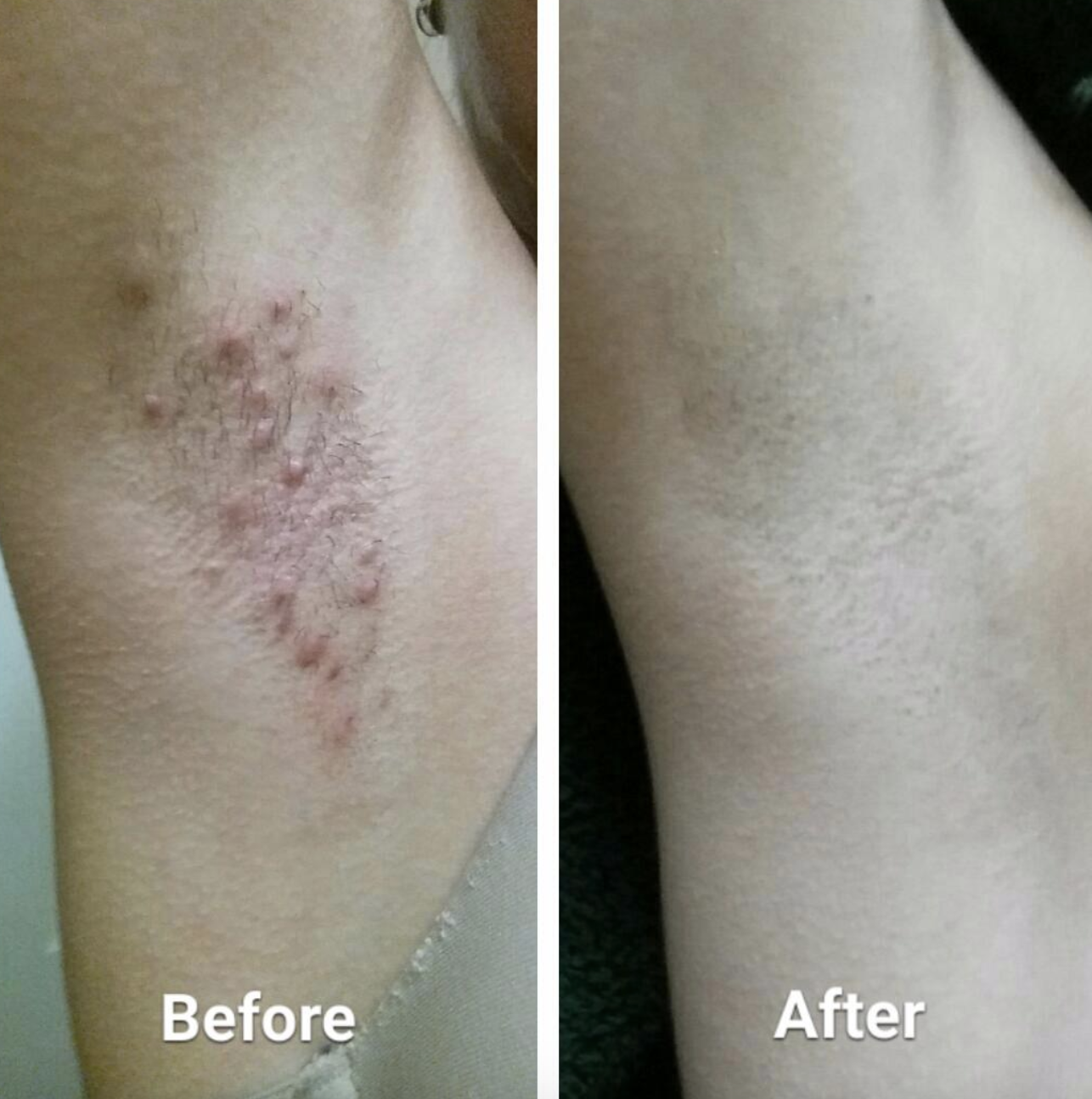 A reviewer's before-and-after photo of their armpit. The first photo shows large red bumps and irritation on an armpit that hasn't been shaved and the second photo shows a freshly shaved armpit without any bumps or redness.