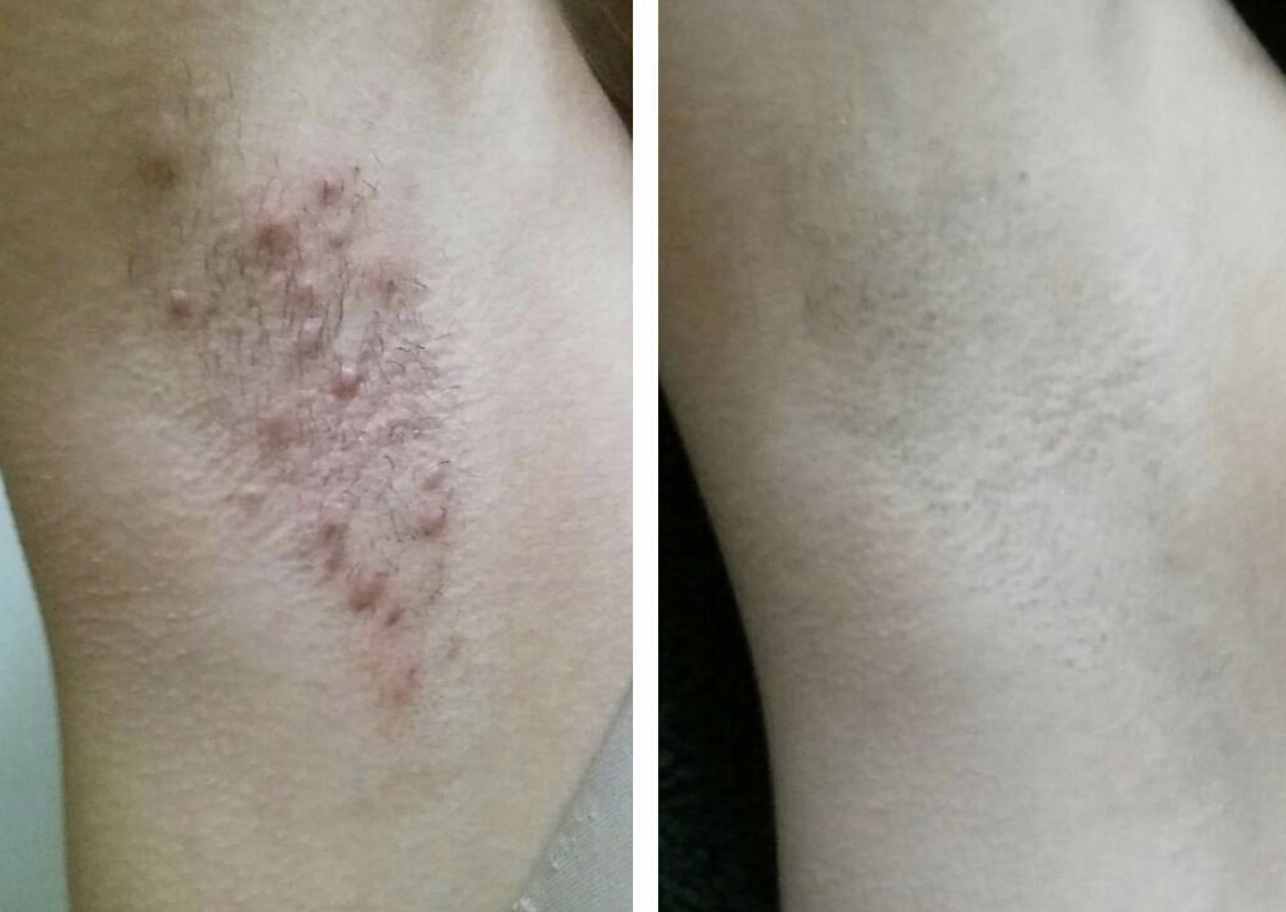 On the left, a reviewer's arm pit has large and angry ingrown hairs. On the right, the reviewer's arm pit is smooth and clear, with zero ingrown hairs