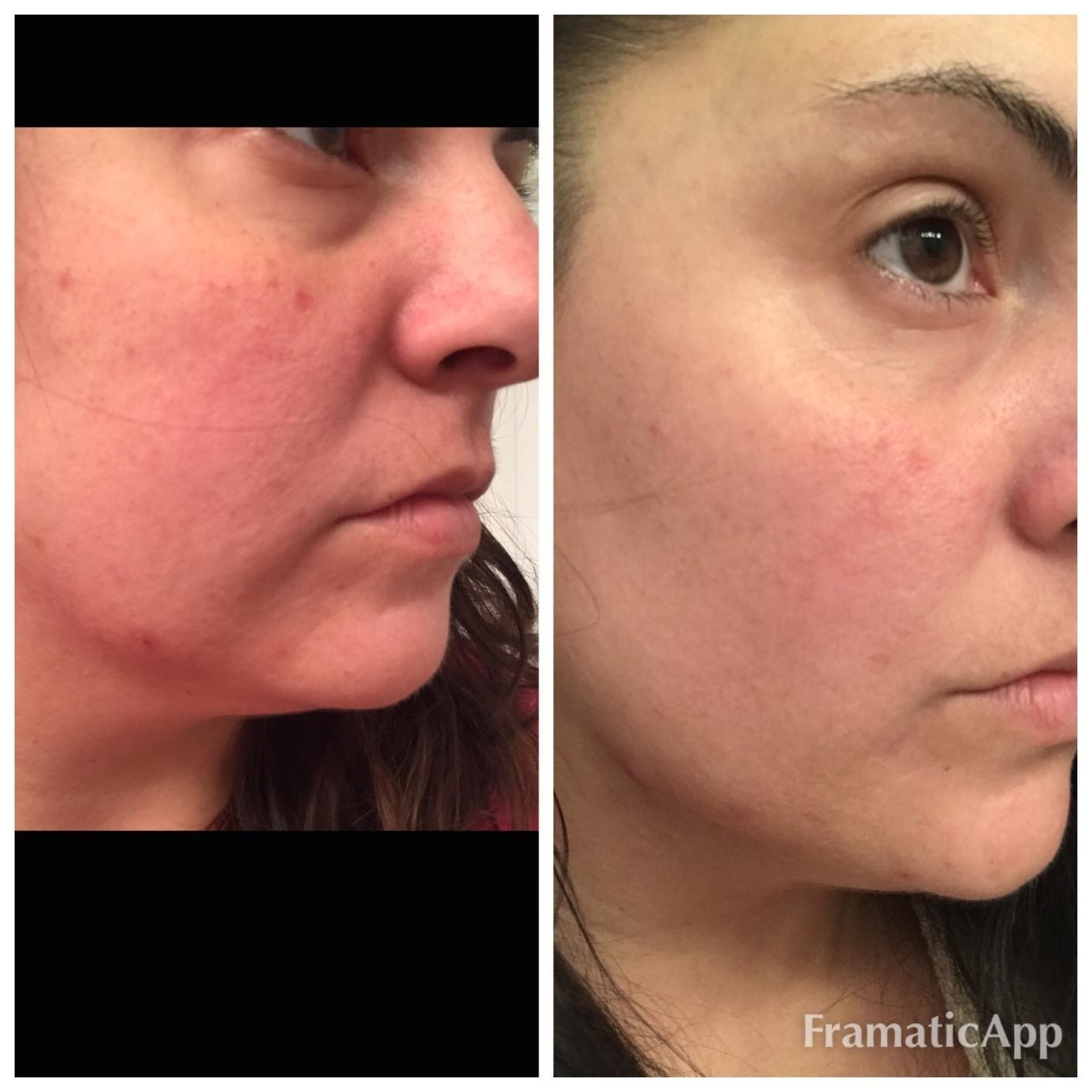 before and after of a reviewer with red flushed skin, then clear, more toned, less red skin after use of product