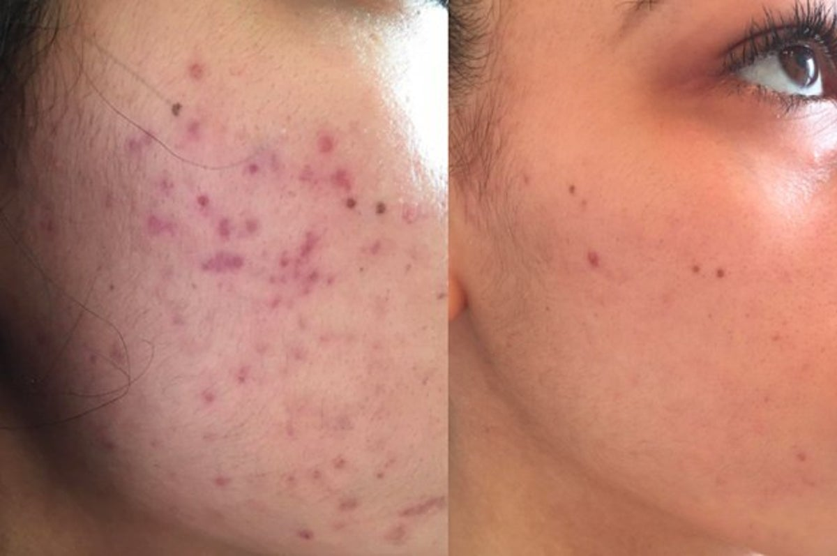 20 Products To Help You Deal With Acne Scars