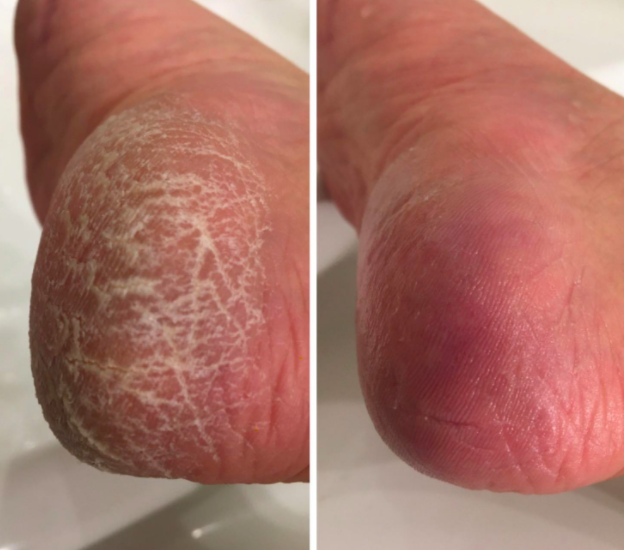 reviewer photo showing their feet before and after using the foot file