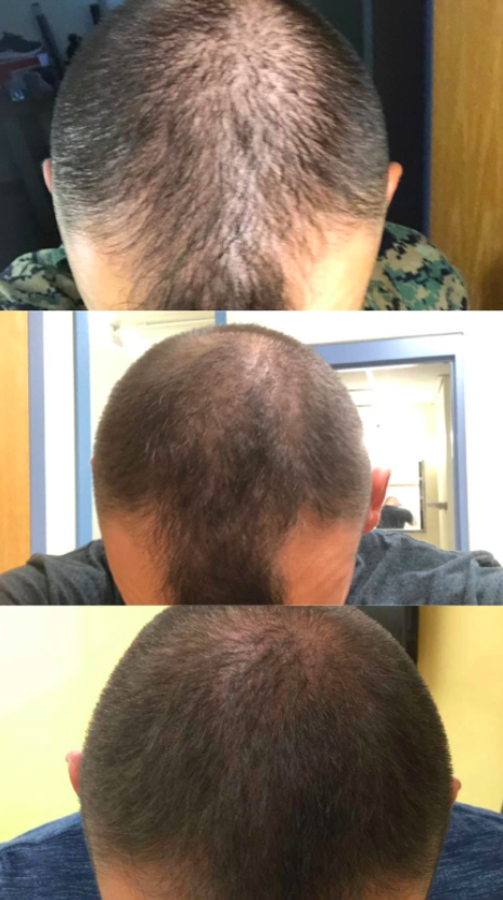reviewer showing their hair before using the shampoo and then after, revealing they experienced some hair growth after consistent use