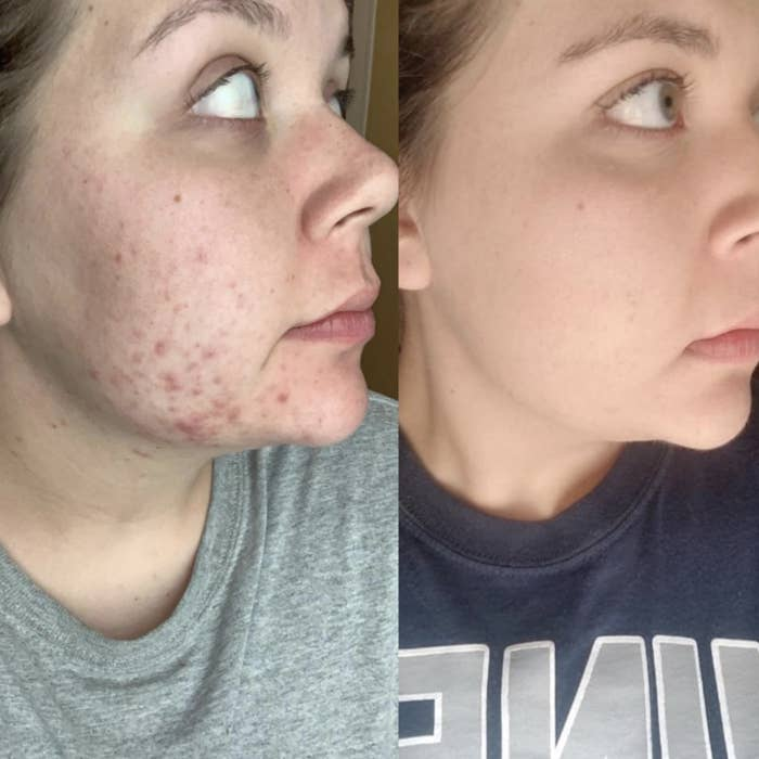 A woman with acne spots on her face and the same woman with an acne-free face