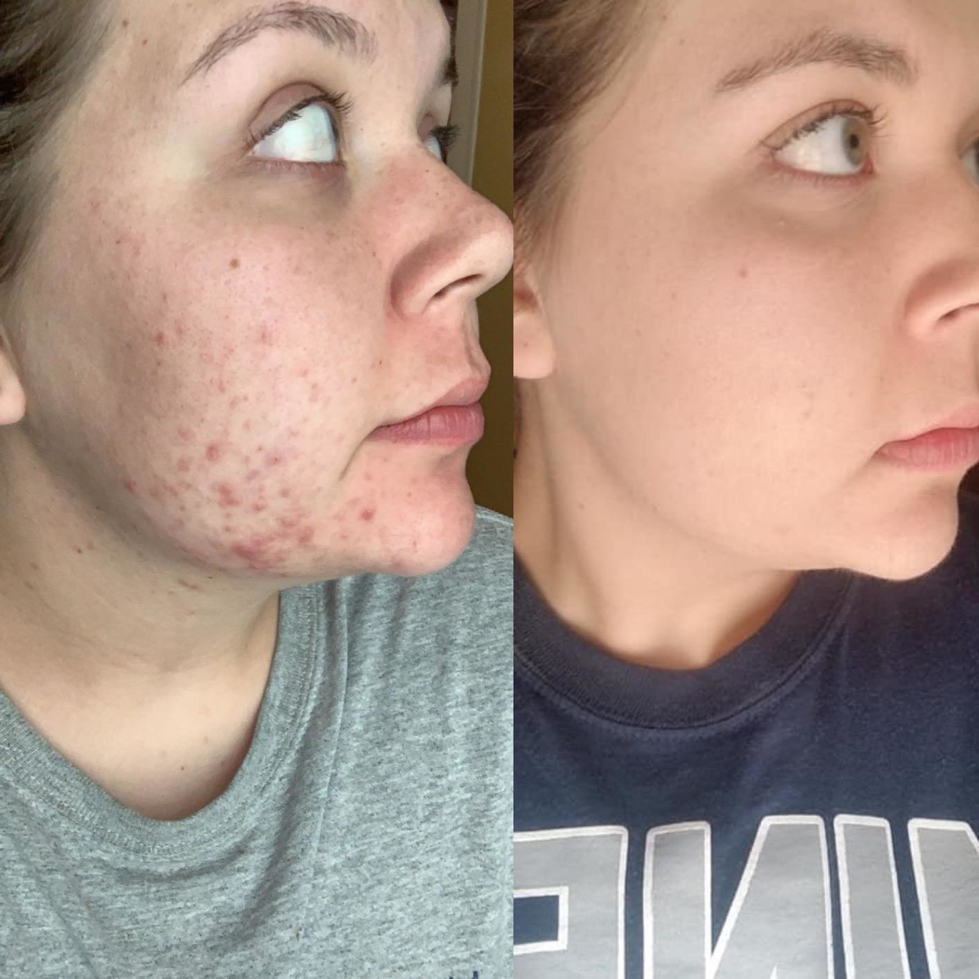 A before photo of a reviewer with lots of acne and acne scars around her chin and cheeks, and an after photo of the same reviewer with clear skin and basically no breakouts or scars
