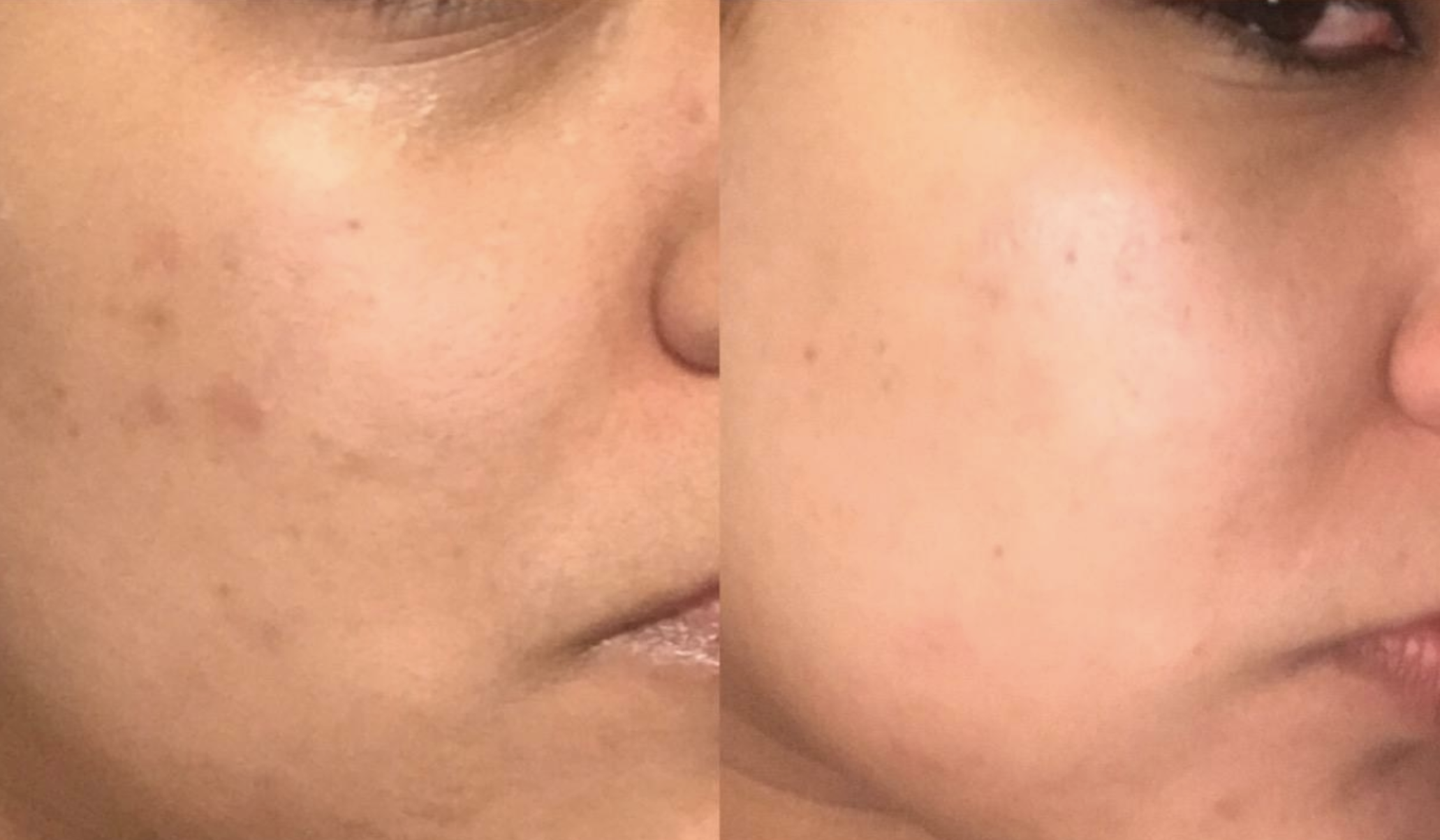 A split photo with a reviewer's face on the left showing dark spots and redness from a blemish and on the right, most of the spots are gone