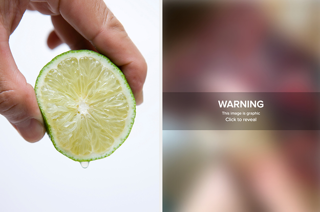These Graphic Pictures Show What Can Happen If You Go Outside After Handling Limes