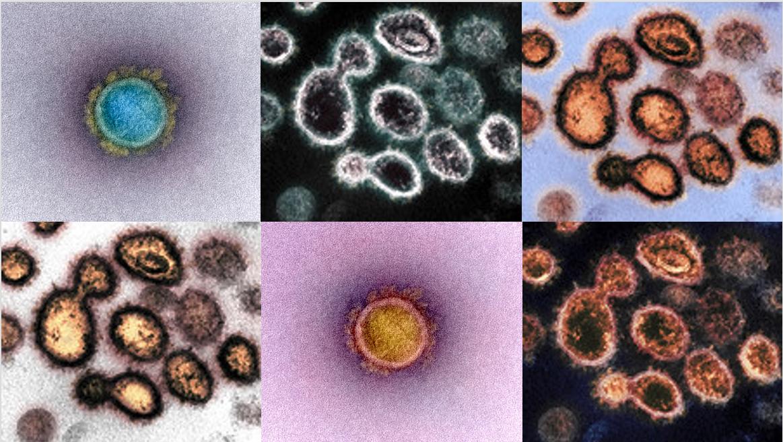 SARS-CoV-2 viruses