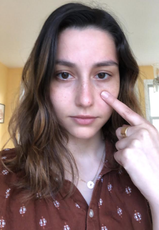 Selfie of me pointing to my little eye bags