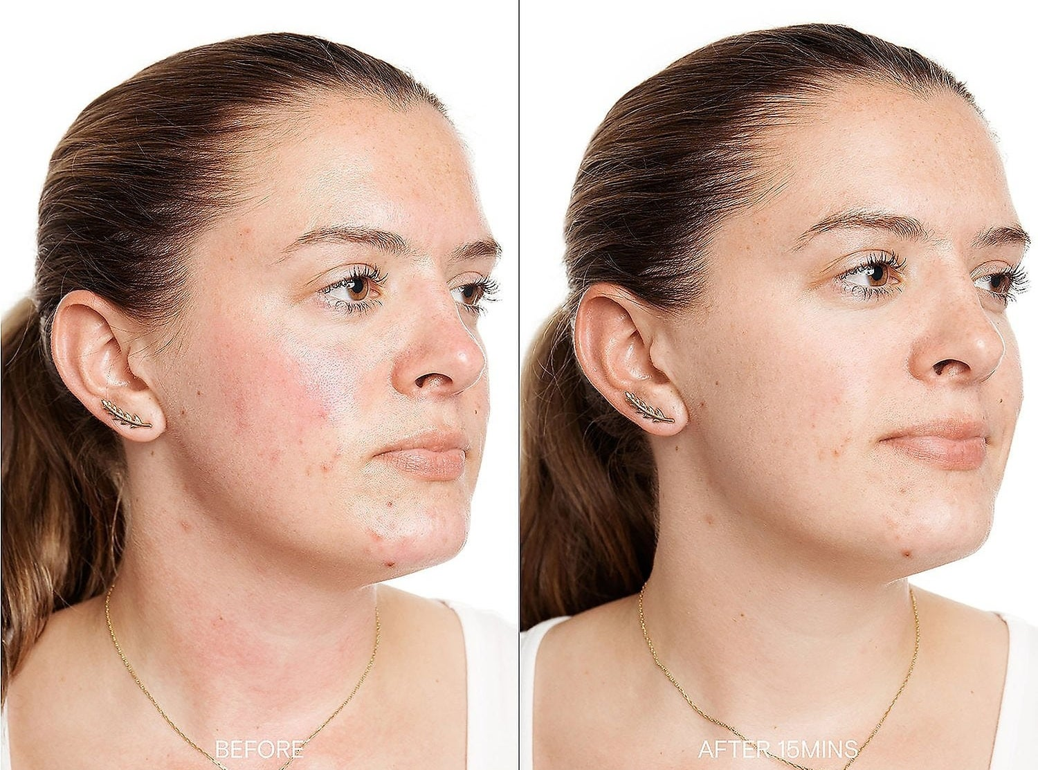 """model with redness on necks and cheeks labeled """"before"""" on the left, same model with no redness labeled """"after 15 mins"""" on the right"""