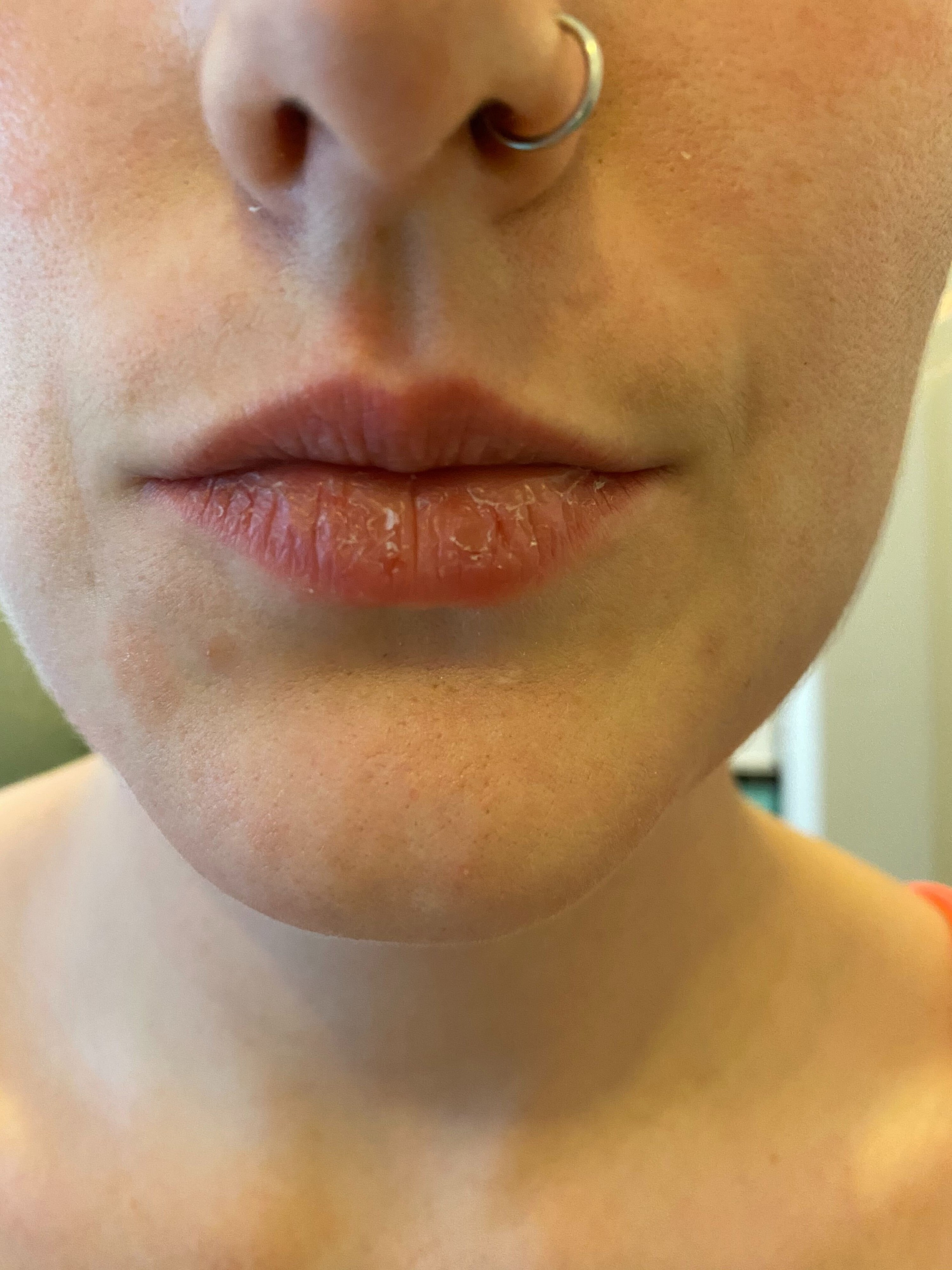 Closeup of my dry and flaky lips.