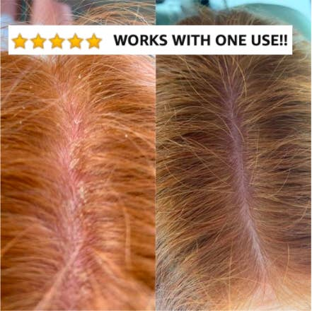 """Reviewer before and after image with dandruff and then without """"works with one use!!"""" text overlaid"""