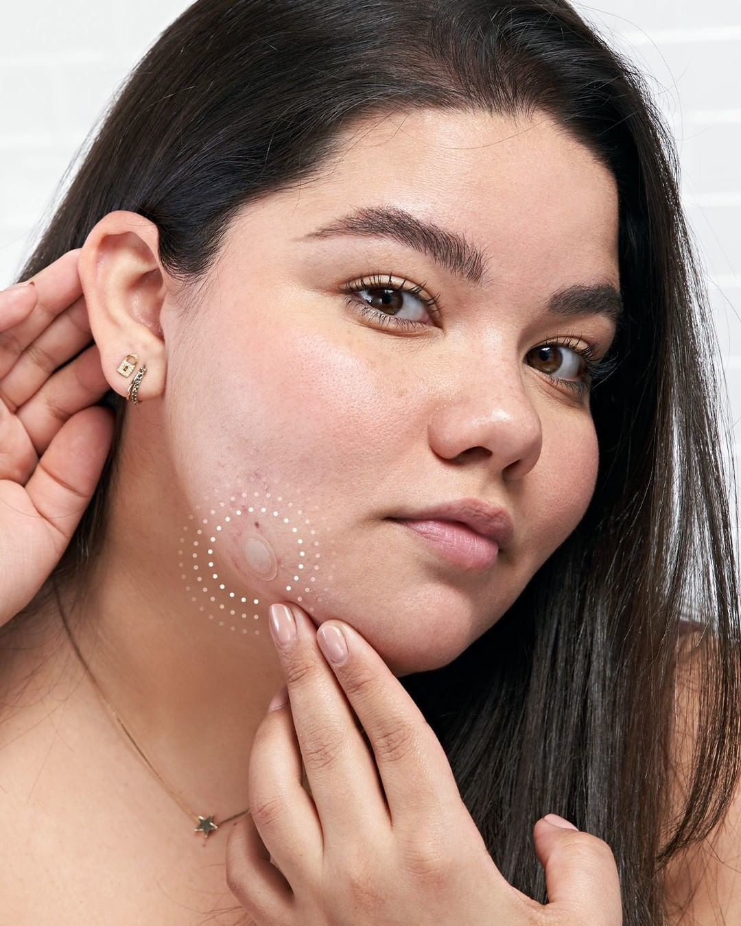 model applying pimple patch to their chin