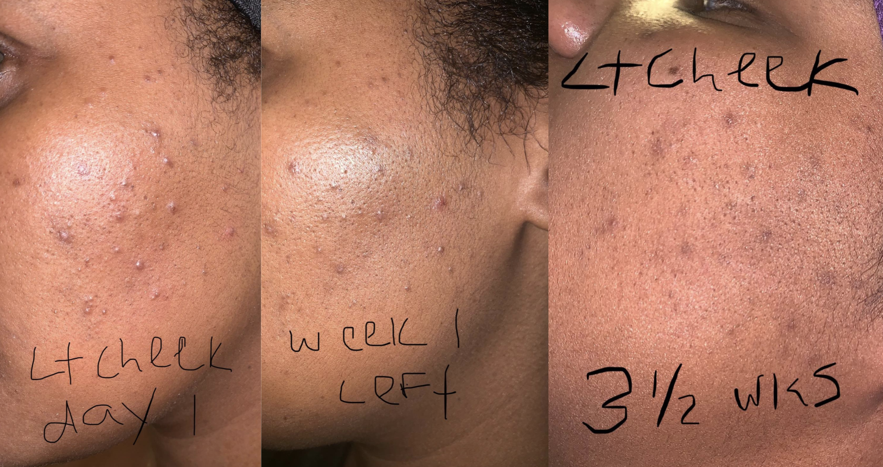 "on the left a person with moderate acne labeled ""lt cheek day 1"" and in the middle the same person with slightly less acne labeled ""week 1 left"" and in the right the same person with significantly less acne labeled ""lt cheek 3 1/2 wks"""