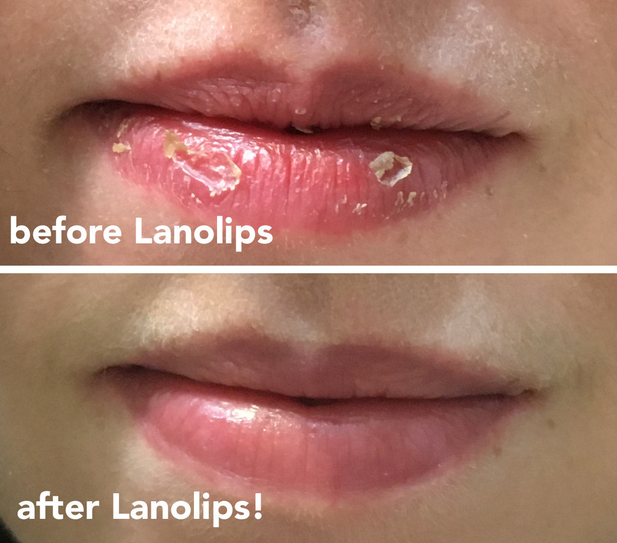 "Natalie Brown with chapped lip labeled ""before Lanolips!"" and smooth lips labeled ""after Lanolips!"""