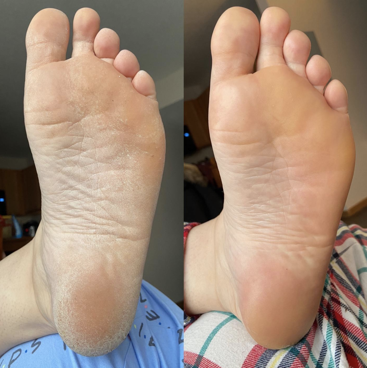 The left side shows a reviewer's foot with calluses all over the bottom of it. The right side shows the same foot after the foot peel and it's completely clear of all calluses.