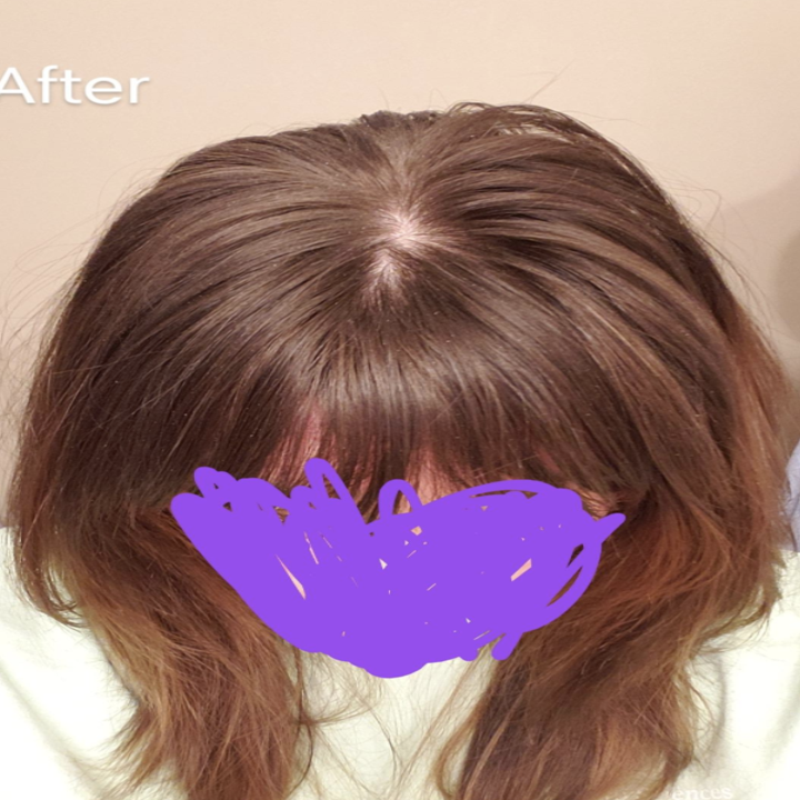 after image of same reviewer with cleaner, less greasy looking hair