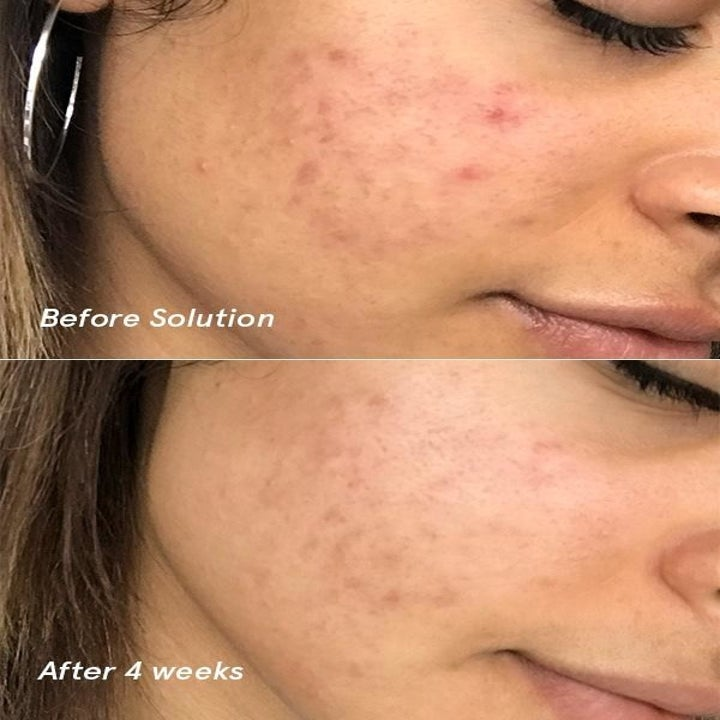 before/after of person's face. the after photo shows less scarring, acne, and redness after using the solution.