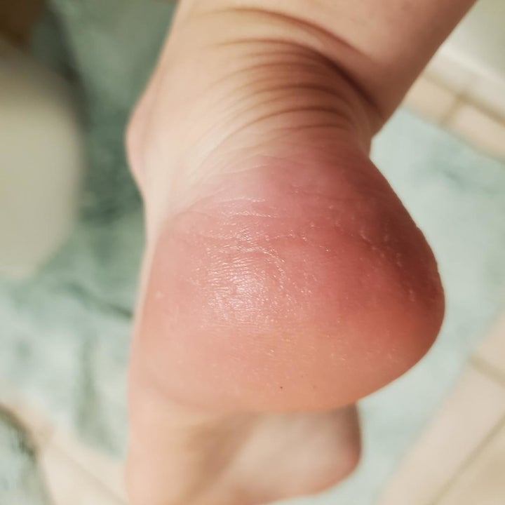 The same reviewer's heel looking smooth and callous-free after using the file