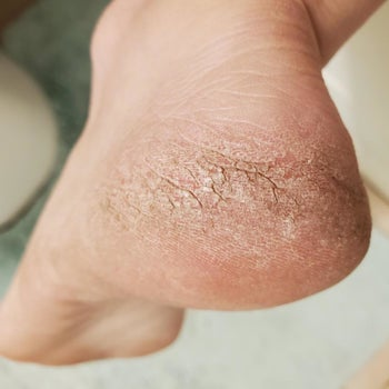 A reviewer's dry calloused heel