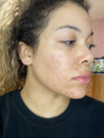 Reviewer's face with less acne and dark spots after using the same formula