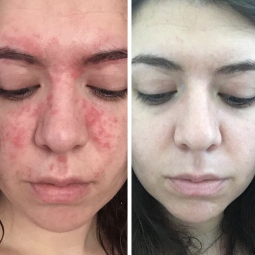 On the left, reviewer's face with redness and breakouts around the cheeks. On the right,  reviewer's cleared-up face after they used Noble Formula's 2% ZnP Original Emu Bar Soap