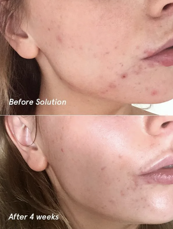 On the left, a model's face with breakouts before using the solution. On the right, a model's face with less breakouts after using the solution for four weeks