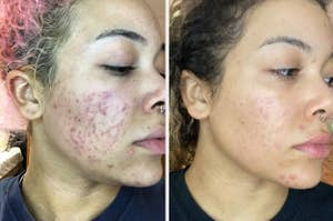 On the left, reviewer's cheek with acne. On the right, same reviewer's face with less acne after using Admire My Skin's 2% Hydroquinone Dark Spot Corrector Remover