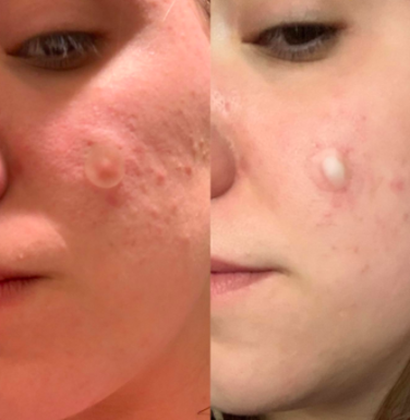 On the left, reviewer places a Mighty Patch on their face. On the right, same reviewer shows Mighty Patch lifting puss out of acne spot on their face