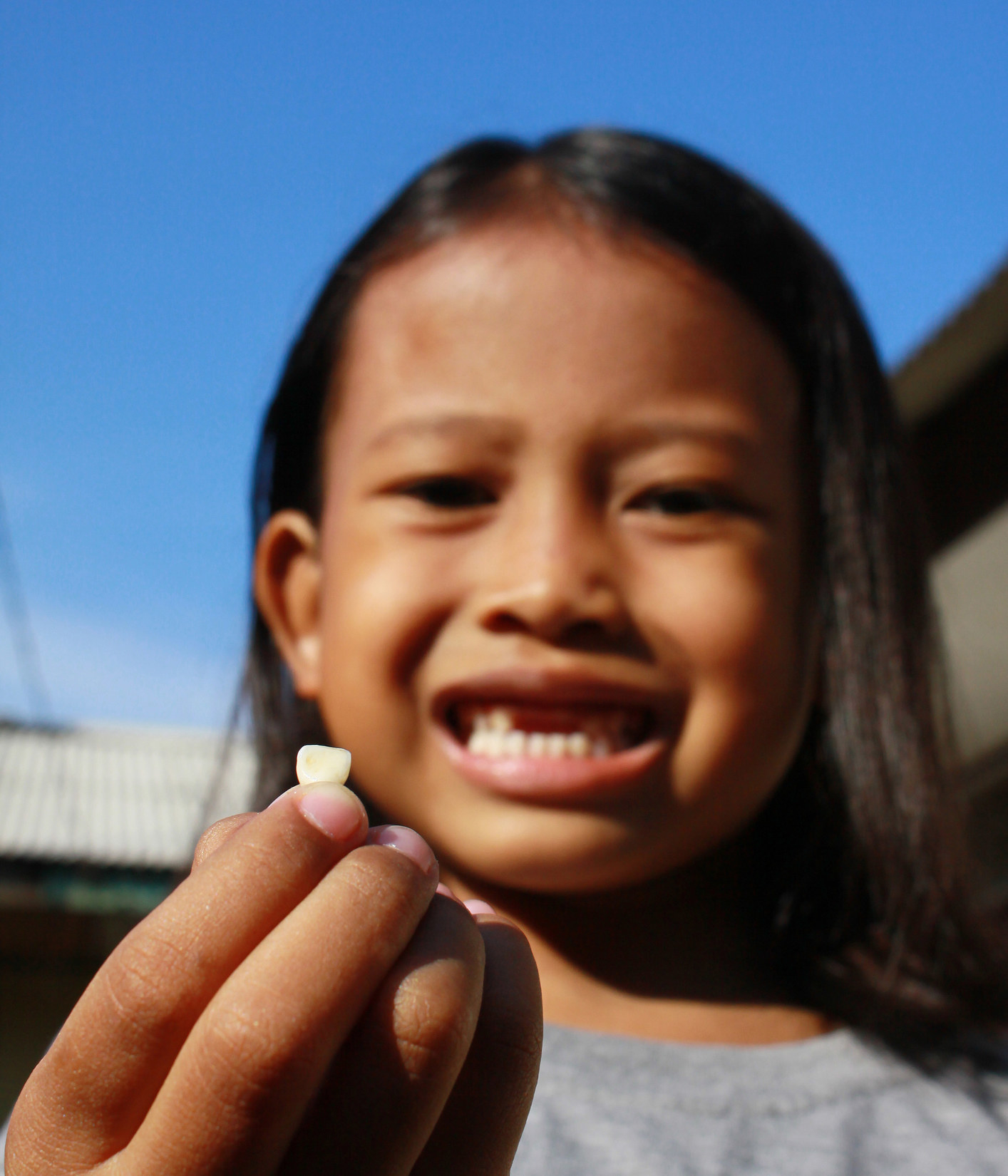 a child holding their missing tooth