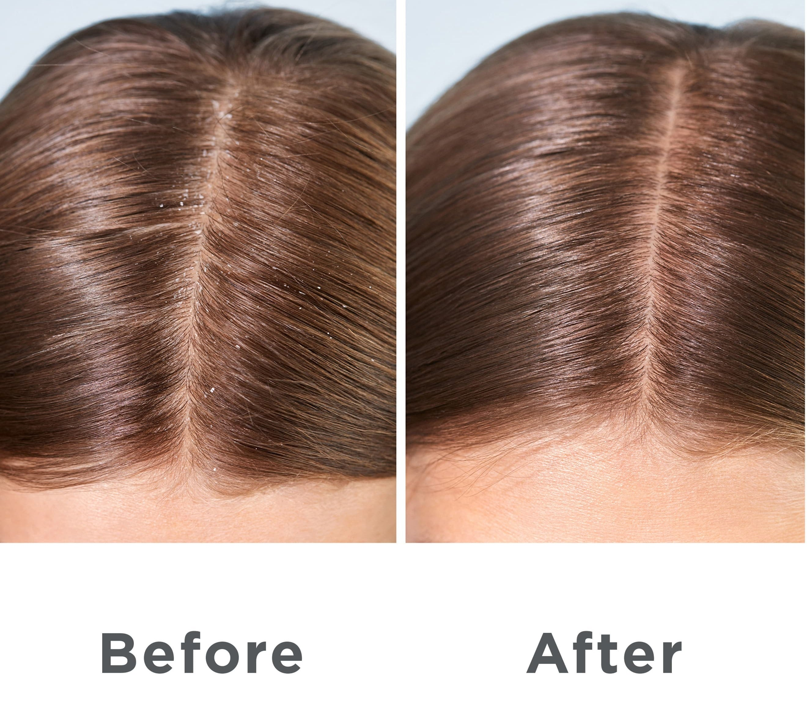 A before and after side-by-side of a model with dandruff and then after using the product the dandruff is gone