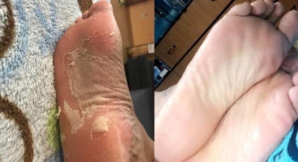 A reviewer before photo of feet peeling while using Baby Foot, and on the right, the same reviewer, showing how smooth their feet are after