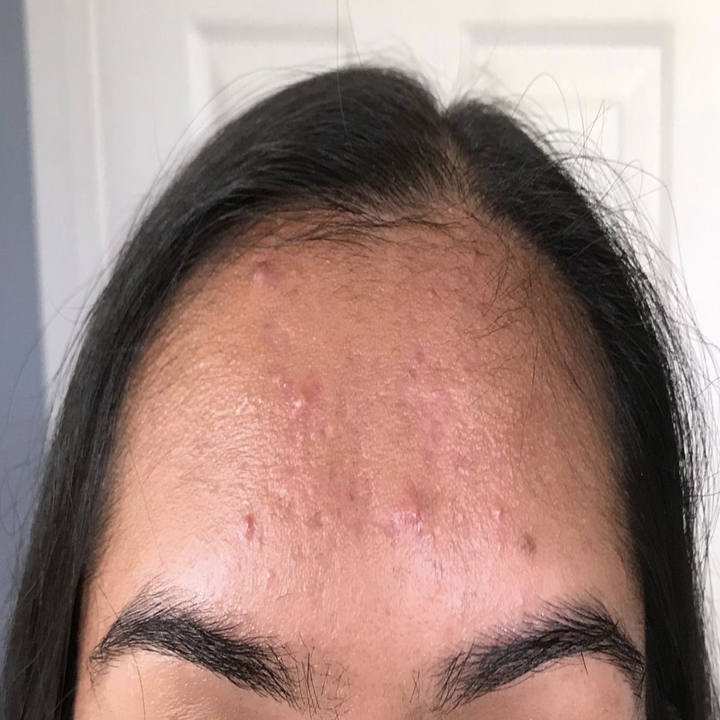 """An """"after"""" pic of the same reviewer without oil on their forehead"""