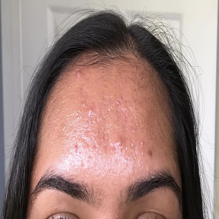 A reviewer image of a person's forehead shiny with oil