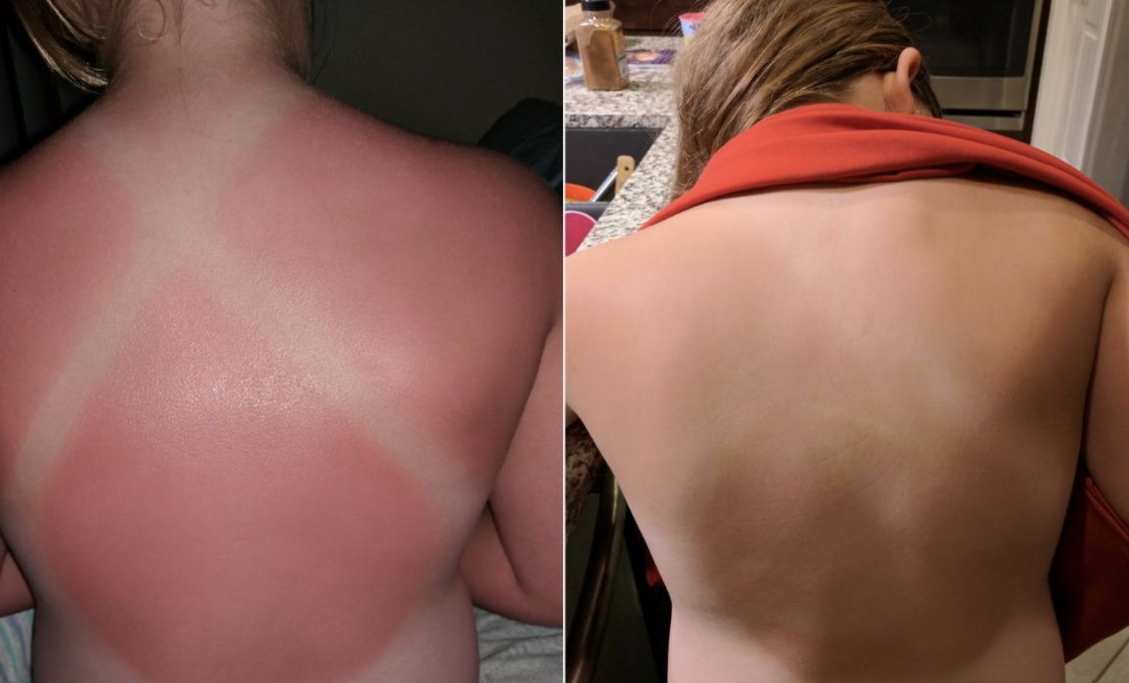 "A reviewer image of a burnt back and an ""after"" image of their back without any redness"