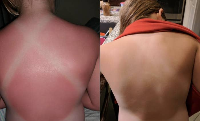 """A reviewer image of a burnt back and an """"after"""" image of their back without any redness"""