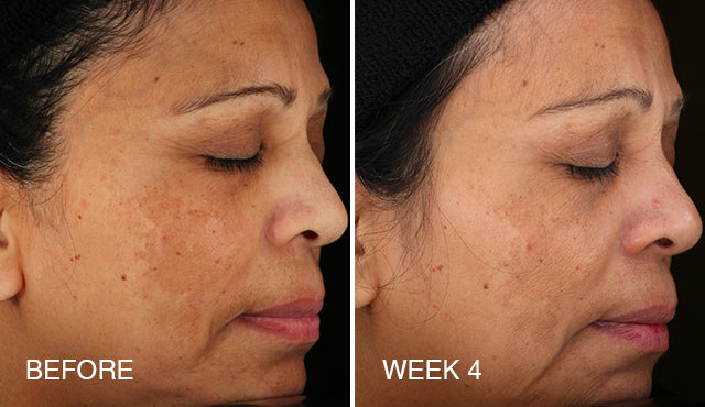 A photo of a person's face with a patch of uneven skin that fades a little by the fourth week of product use