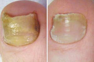 A thick, yellow toe nail on the left and a smoother looking, less yellow toe nail on the right