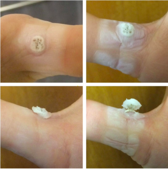A set of four reviewer pictures: The wart turned white, the wart even whiter and starting to rise, the wart starting to separate, and the wart peeling off