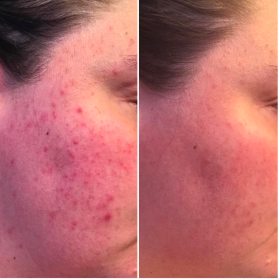 On the left, a reviewer's cheek covered in small red pimples. On the right, the same cheek with the bumps almost entirely gone