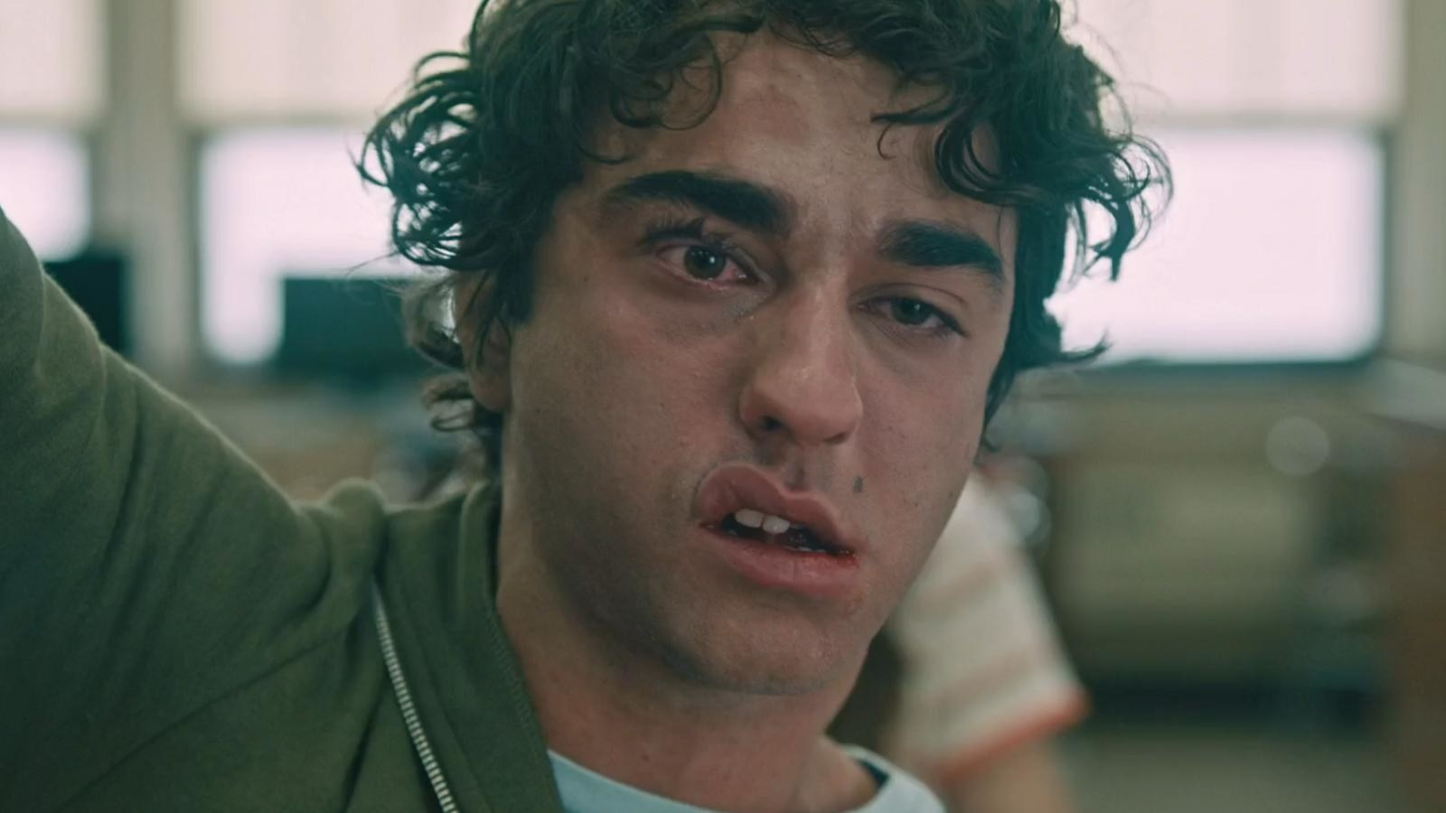 "Actor Alex Wolff in ""Hereditary"" looking very beat-up."