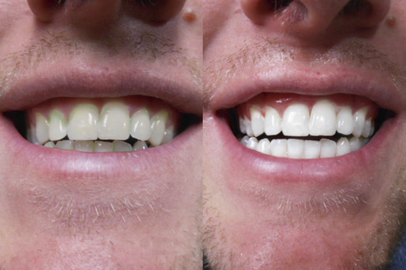 Left side shows reviewer's teeth that are yellowed and dull. The right side shows the reviewer's teeth after using the pen and they're much whiter.