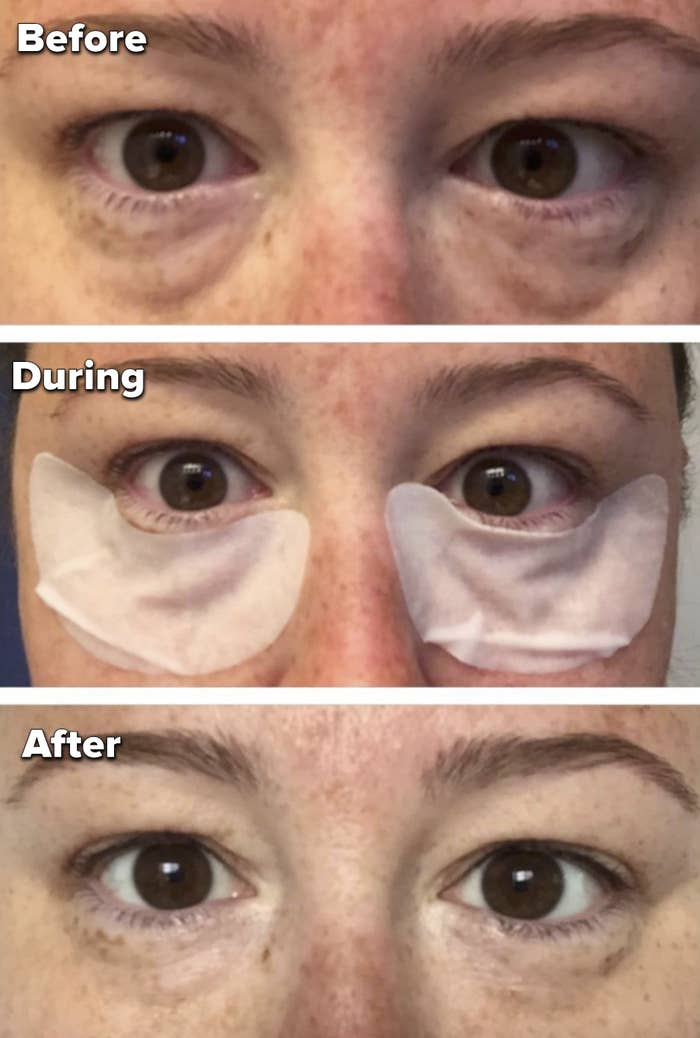 The top photo shows a reviewer with bags underneath their eyes. Middle photo is of the same person wearing the eye patches. Last photo shows the person with a decrease in bags.